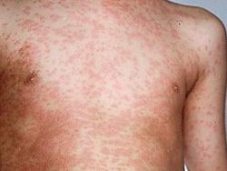 Bệnh Rubella khác gì với bệnh sởi?