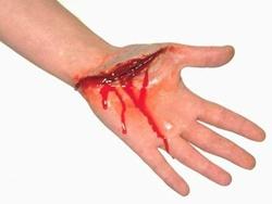 Cấp cứu vết thương mạch máu