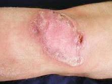 Triệu chứng của bệnh lao da