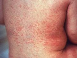 Điều trị sốt phát ban dạng Rubella