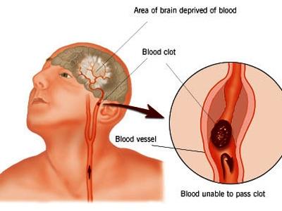Bệnh lý mạch máu não là phần quan trọng của bệnh học thần kinh - có nhiều loại bệnh mạch máu não với nhiều chứng bệnh rất đa dạng và phức tạp. tai biến mạch máu não là phần quan trọng của bệnh lý mạch máu não - là chứng bệnh thường gặp ở khoa hồi sức cấp cứu khoa nội tim mạch thần kinh khoa phục hồi chức năng