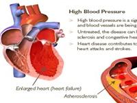 Dùng phẫu thuật để điều trị bệnh cao huyết áp