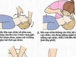 Cách hô hấp nhân tạo và xoa bóp tim ngoài lồng ngực