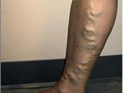 """""""Nổi gân"""" bắp chân, dấu hiệu suy tĩnh mạch chi"""