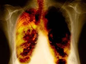 Ung thư phổi có liên quan đến thói quen ăn uống