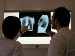 Dấu hiệu nghi ngờ và các phương pháp phát hiện bệnh lao